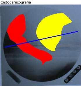 cistodefecografia