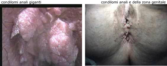 condilomi-anali